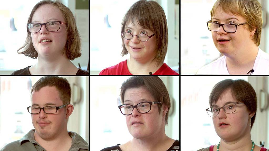 Syndrom down Down Syndrome: